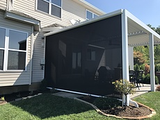 Retractable Screen Shade in St. Louis, MO
